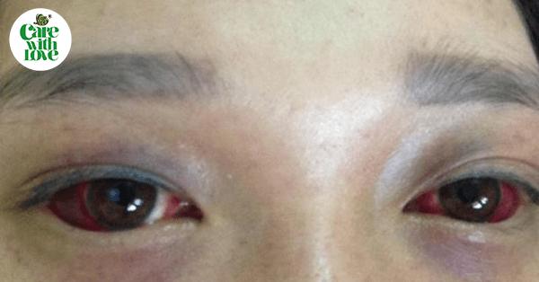 Giật mình hình ảnh mắt đỏ quạch của mẹ sau sinh