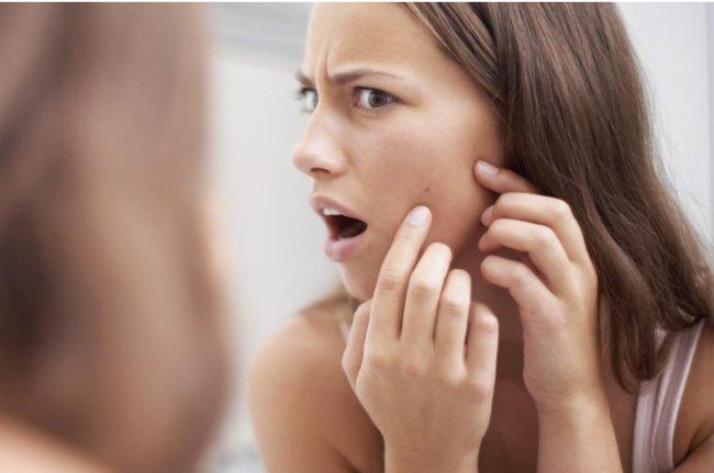 7 Cách cải thiện làn da bà bầu bị mụn hiệu quả nhất hiện nay