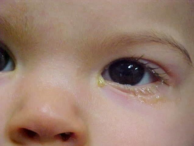 Tắc tuyến lệ ở trẻ sơ sinh: nguyên nhân và cách điều trị